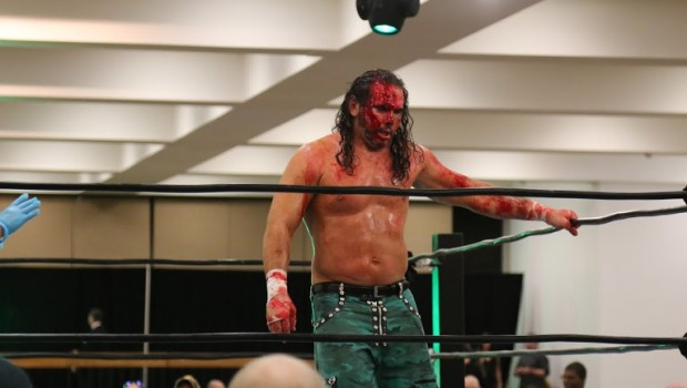Matt Hardy Got Head Badly Busted Open (Graphic Photos &Video)