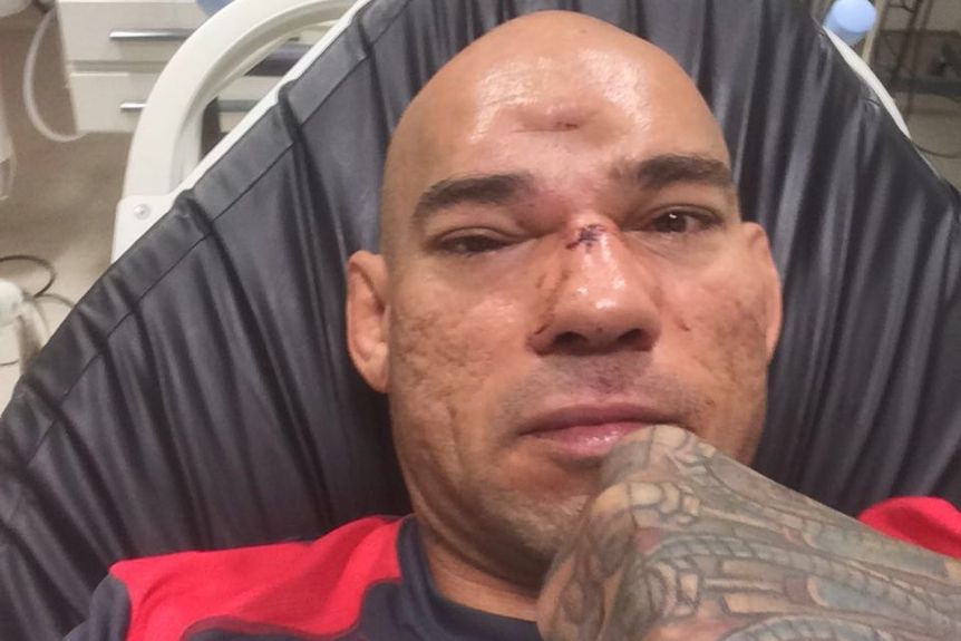 "Bellator Fighter Evangelista ""Cyborg"" Santos Recovering From Fractured Skull"
